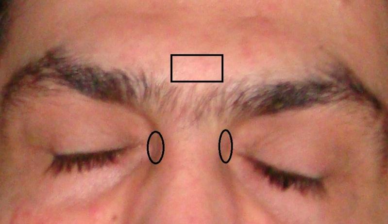 نقاط الوجه